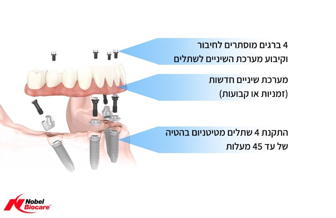 השתלת שיניים ביום אחד אול און 4