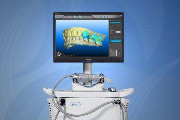 סורק אופטי חדשני מסוג iTero יבצע סריקות שיניים מושחזות בפי המטופלים ויחסוך להם טרטורים מיותרים