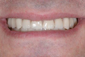 עדות לאחר השתלת שיניים All-On-4